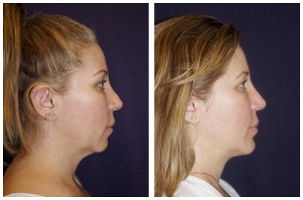 Neck Liposuction
