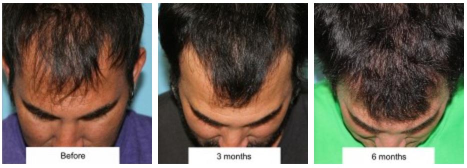 Hair Transplant Beverly Hills Facial Plastic Surgery