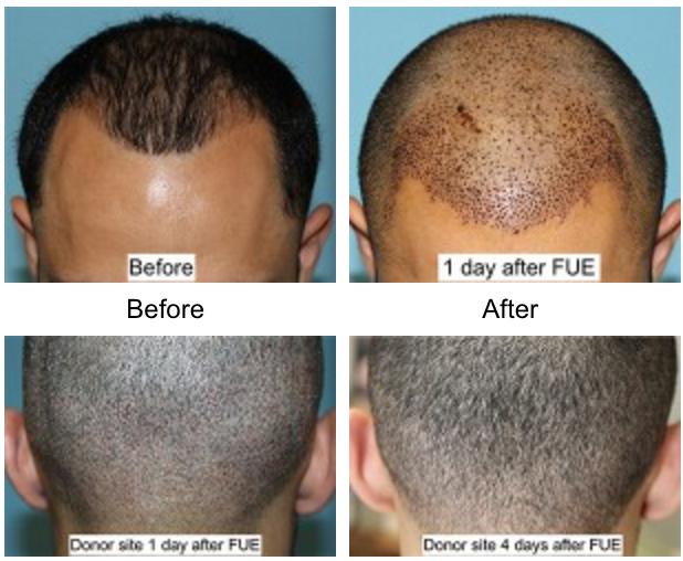 Hair Transplant Beverly Hills Facial Plastic Surgery 2