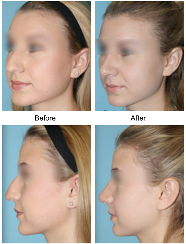 Rhinoplasty Facial Plastic Surgery Beverly Hills 2