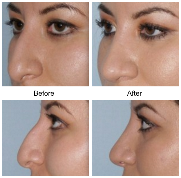 Rhinoplasty Facial Plastic Surgery Beverly Hills 3