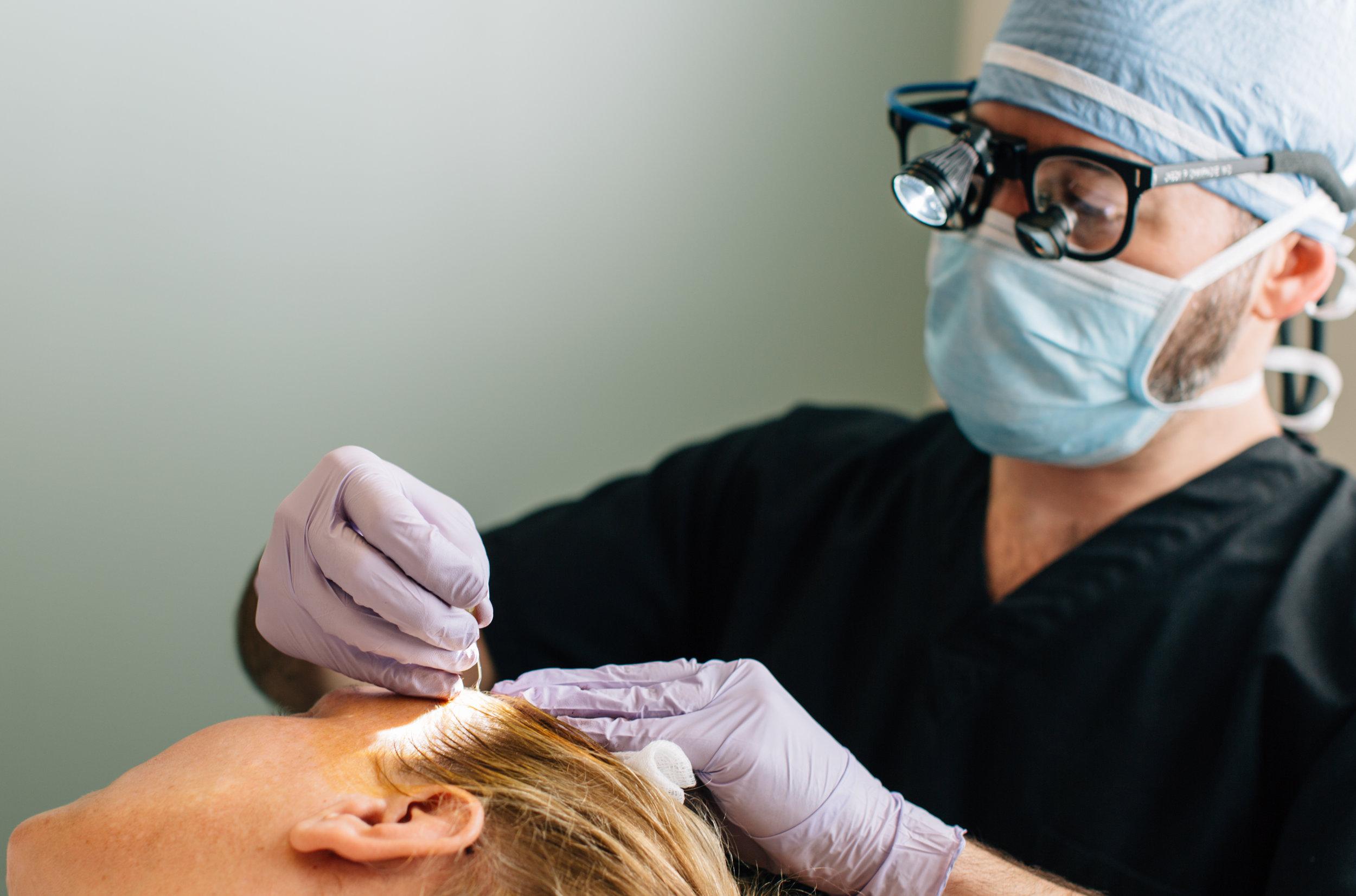Hair Transplant Facial Plastic Surgery Beverly Hills 1