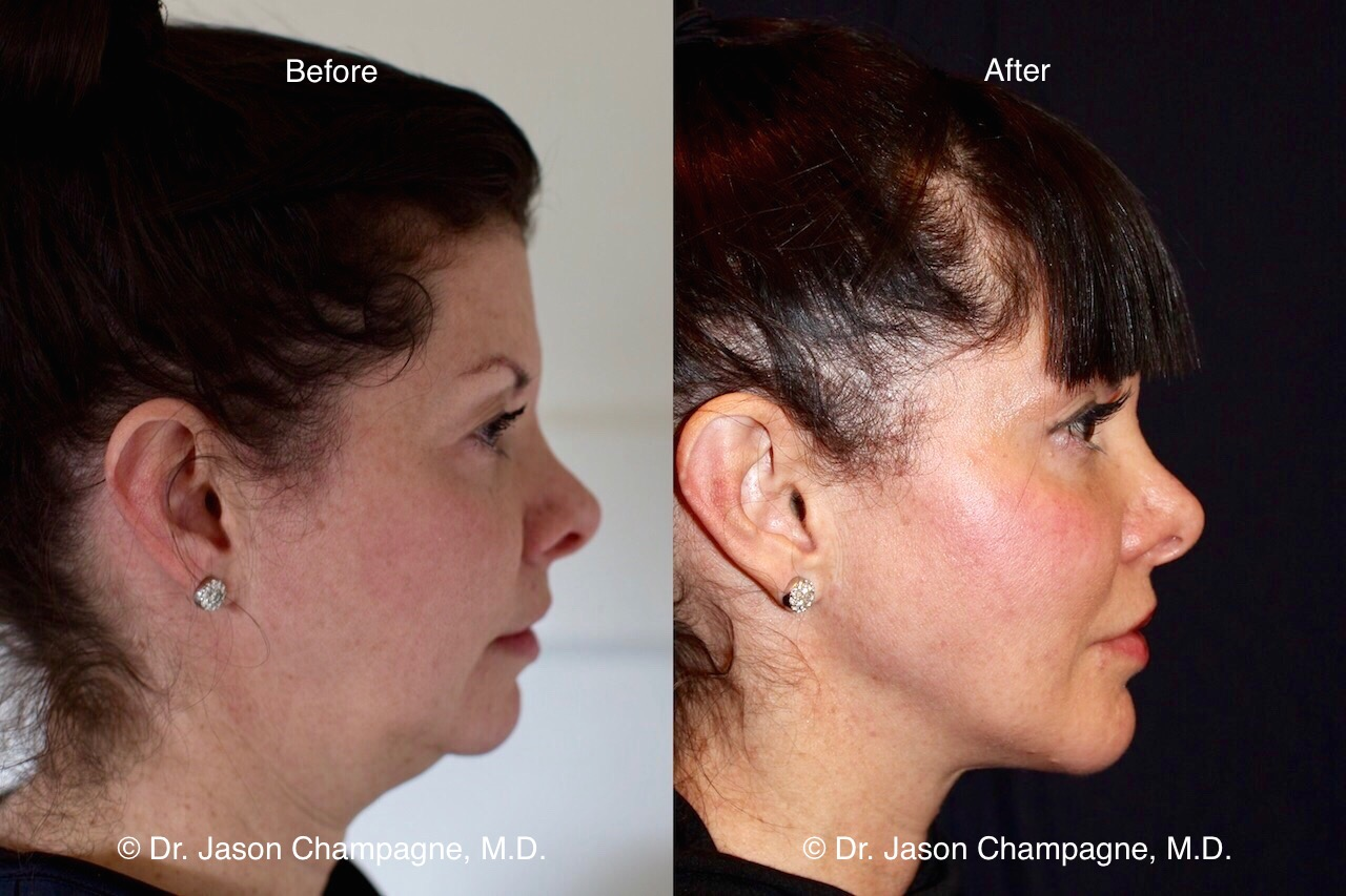 Patient Procedure: RFAL with Chin Augmentation with an implant.