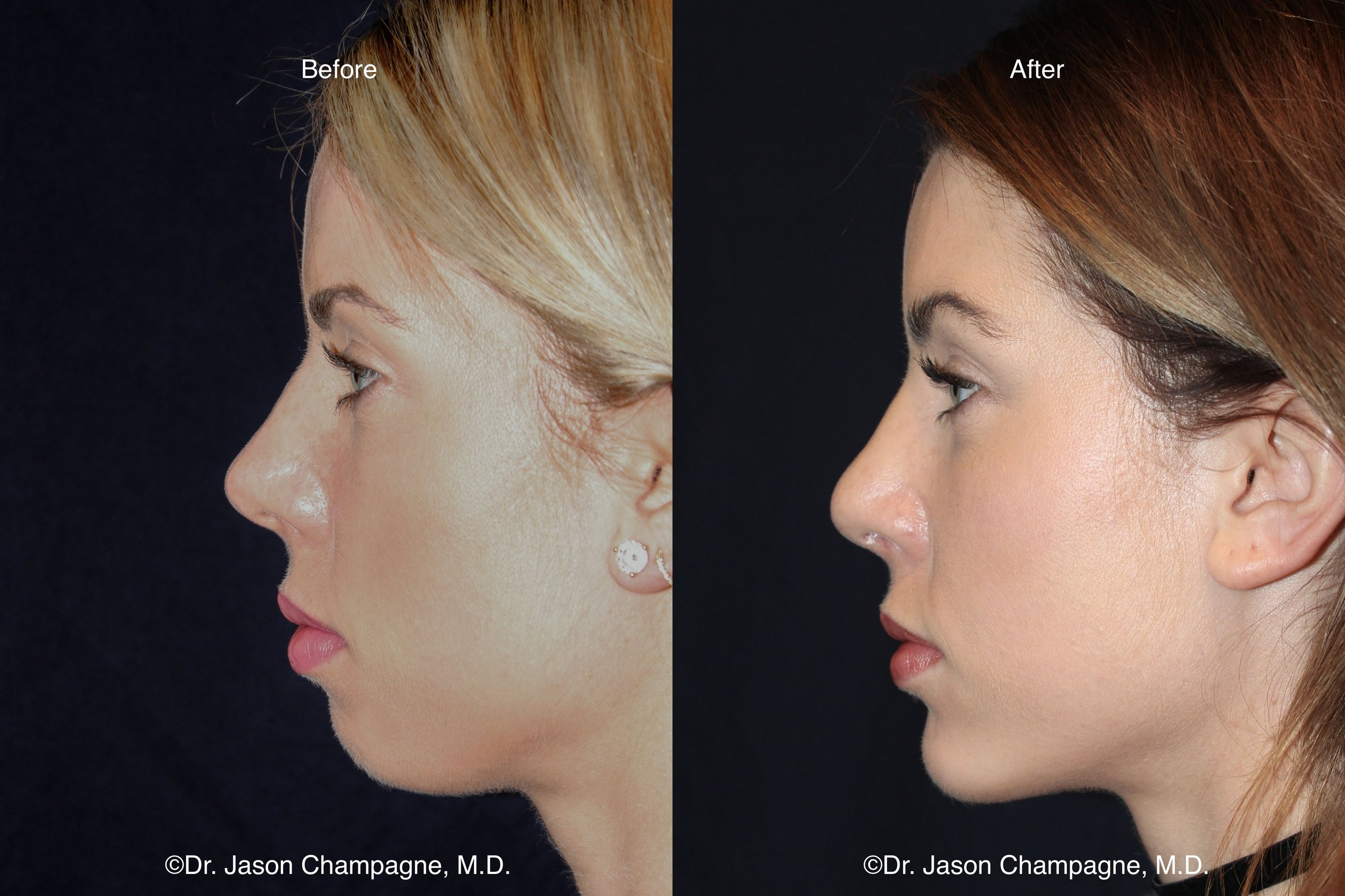 Jason Champagne Beverly Hills Facial Plastic Surgery Chin Implant Profile Before and After