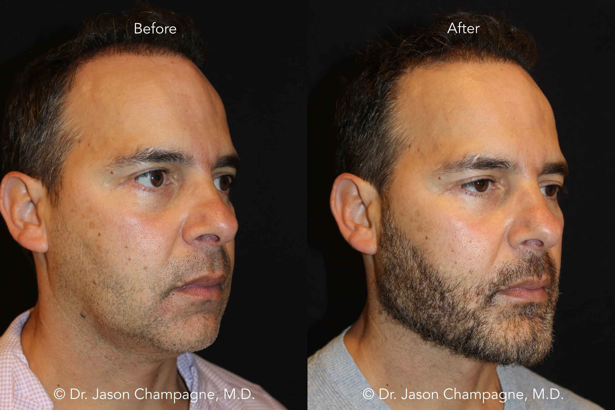 Dr-Jason-Champagne-Facial-Plastic-Surgery-Beverly-Hills-Fat-Transfer-and-Custom-Chin-and-Jaw-RFAL-Before-and-After-1