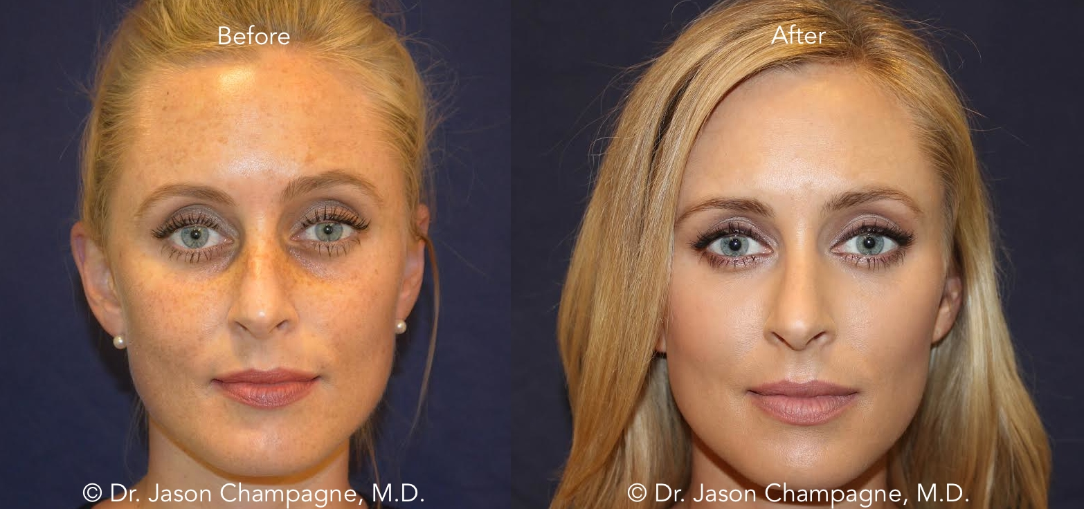 Dr-Jason-Champagne-Facial-Plastic-Surgery-Beverly-Hills-Tear-Trough-Filler-and-IPL-Before-and-After