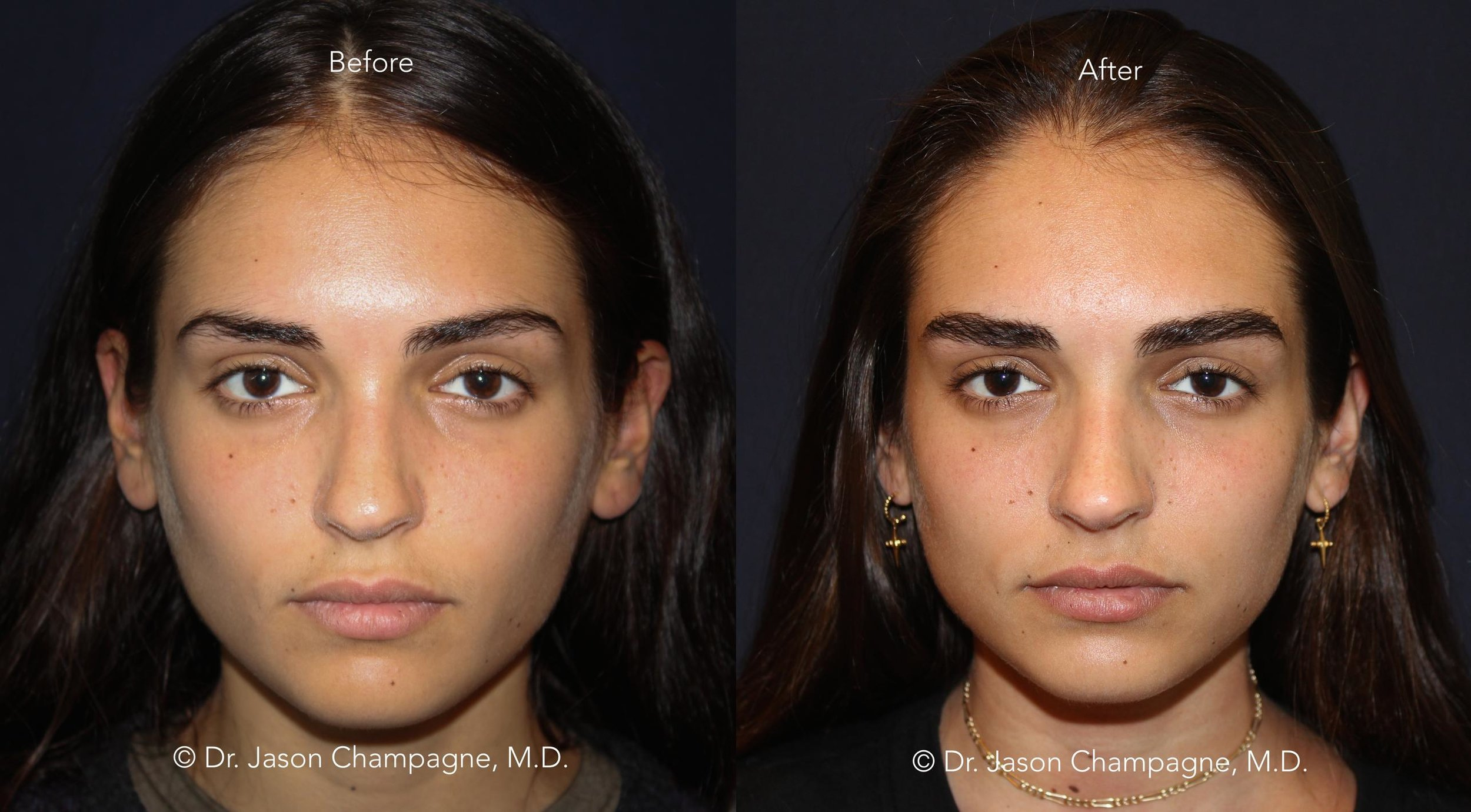 Dr-Jason-Champagne-Eyebrow-Hair-Transplant-Before-and-After
