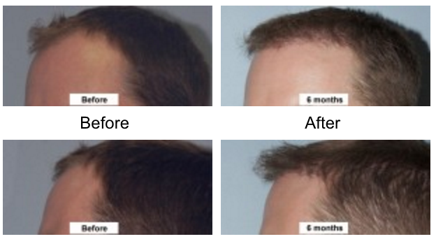 Dr-Jason-Champagne-Hair-Transplantation-Before-and-After