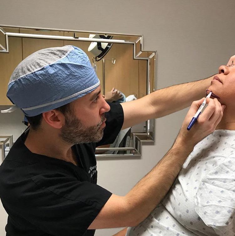 Dr-Jason-Champagne-Custom-Chin-Implant-and-Rhinoplasty