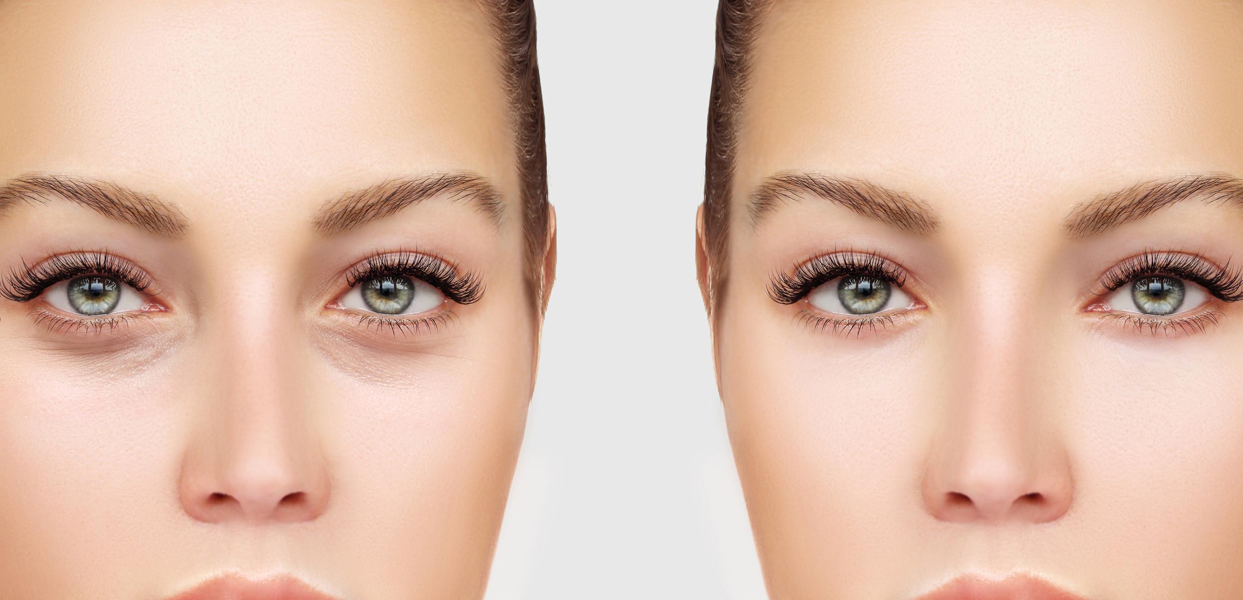 Dr-Jason-Champagne-Blepharoplasty-Upper/Lower-Eyelid-Lift