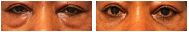 Dr-Jason-Champagne-Blepharoplasty-Before-and-After