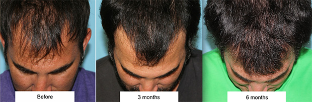Hair Transplant Facial Plastic Surgery Beverly Hills Before-and-After.jpg