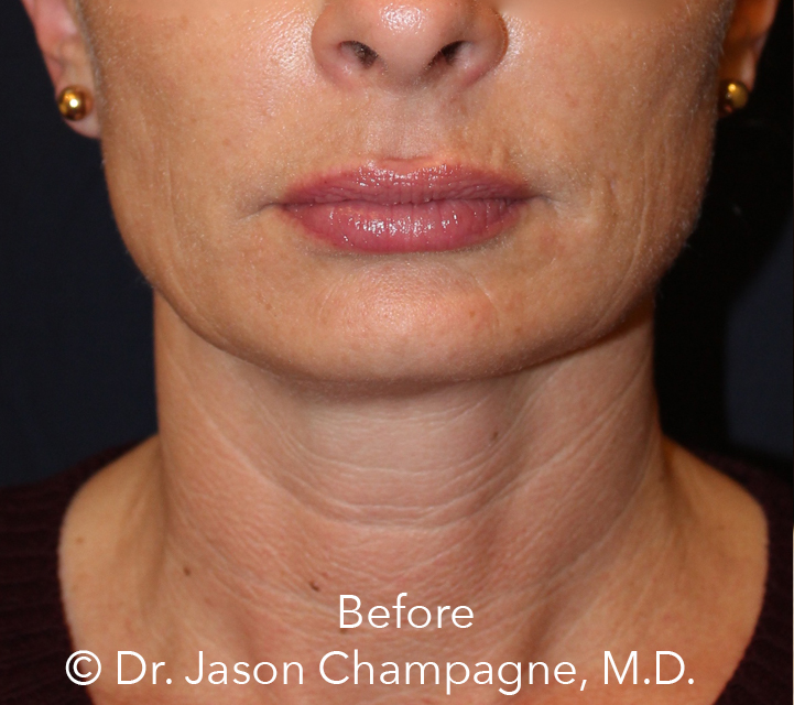 Dr-Jason-Champagne-mini facelift-necklift-chin-implant-CO2 laser-skin-resurfacing-Before.jpg