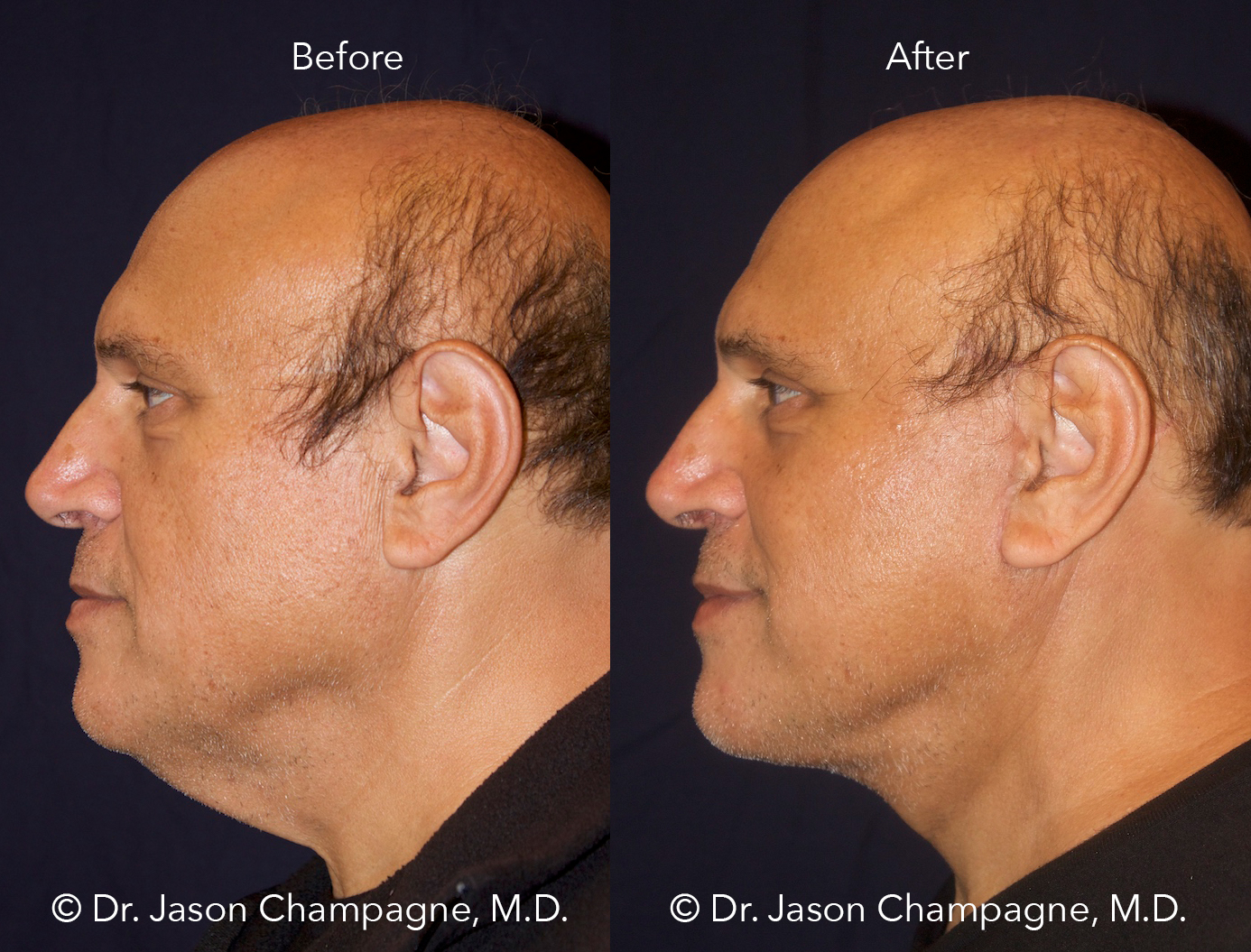 Dr-Jason-Champagne-lower-facelift-neck-lift-and-neck-liposuction-before-and-after