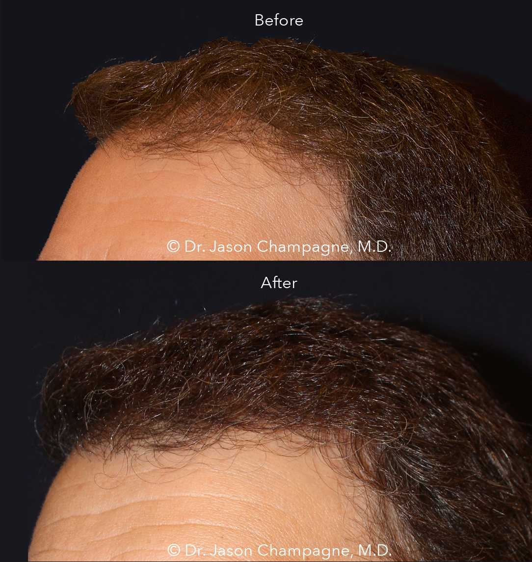 Dr-Jason-Champagne-Hair-Transplant-Before-and-After