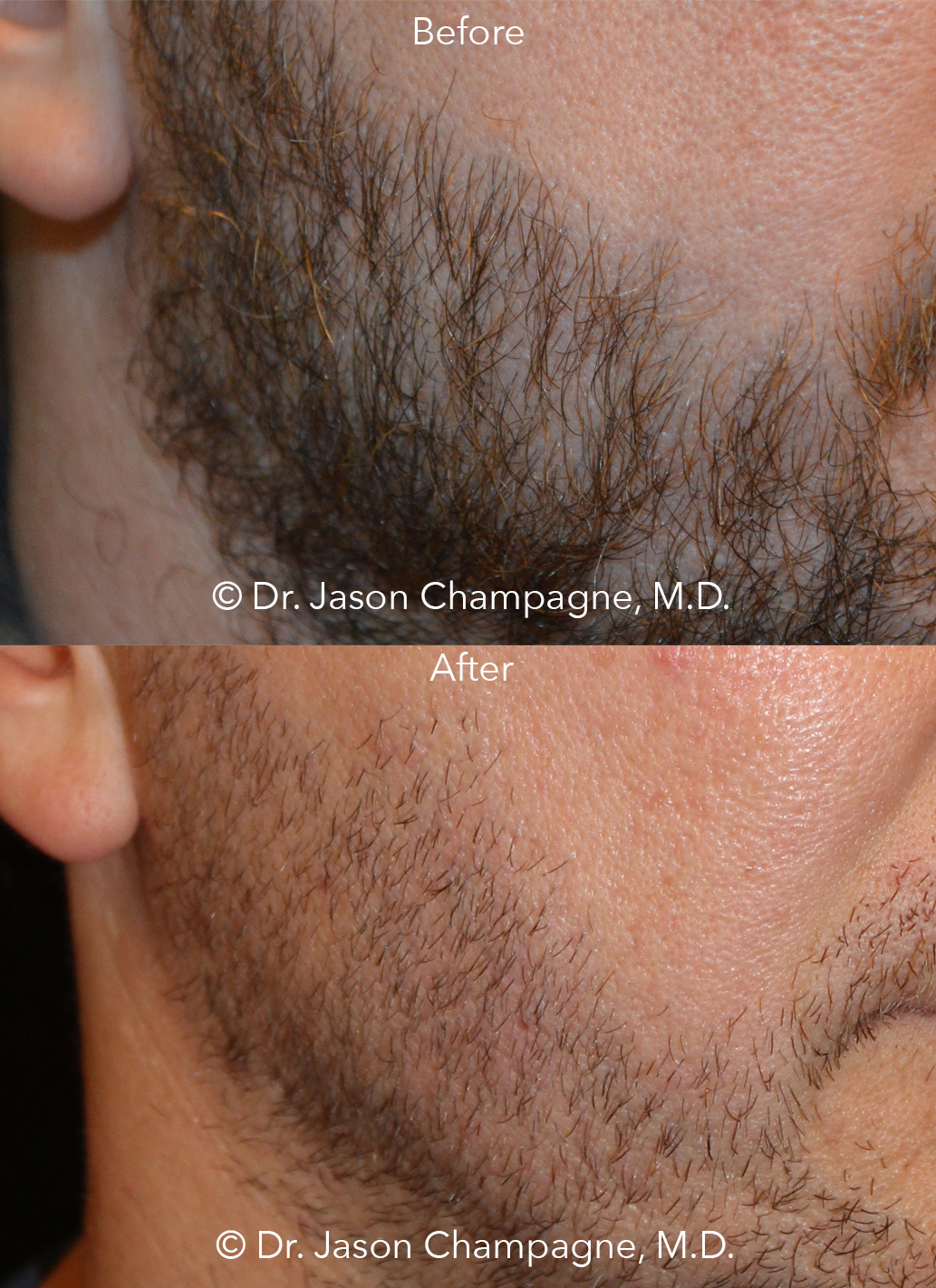 Note: After picture shows the density of hair follicle placement in the center of the patient's cheek and the new, natural looking beard hairline design.