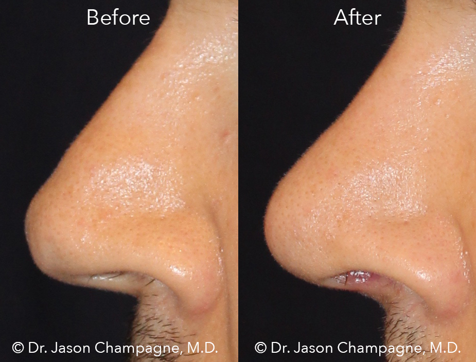 Dr-Jason-Champagne-Plastic-Surgery-tip-rhinoplasty-male-rhinoplasty-finesse-tip-rhinoplasty-before-and-after