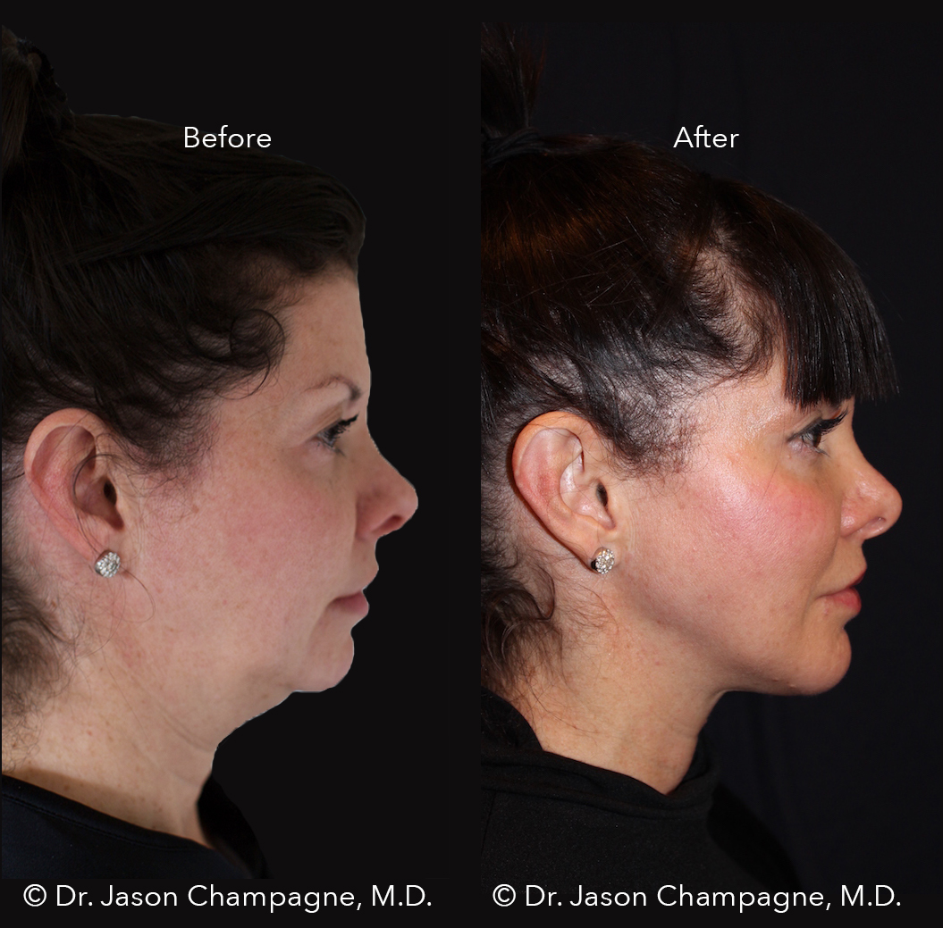 Dr-Jason-Champagne-Chin-Implant-Advanced-Radio-Frequency-Skin-Tightening-Before-and-After