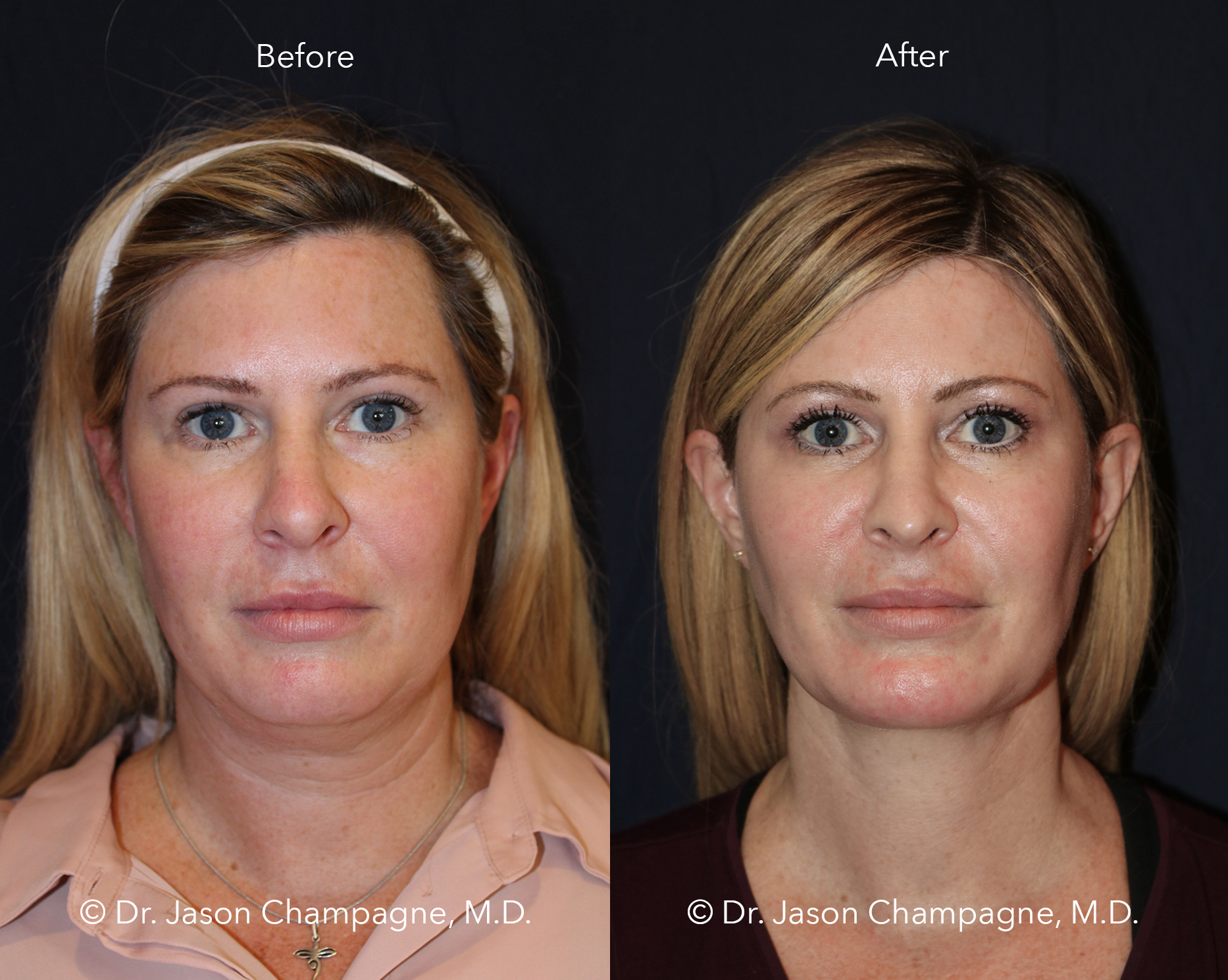 Dr-Jason-Champagne-Neck-Liposuction-Chin-Implant-Neck-Lift-Face-Lift-Rhinoplasty-Advanced-Radio-Frequency-Skin-Tightening-CO2-Laser-Skin-Resurfacing-Buccal-Fat-Excision-Before-and-After-Front