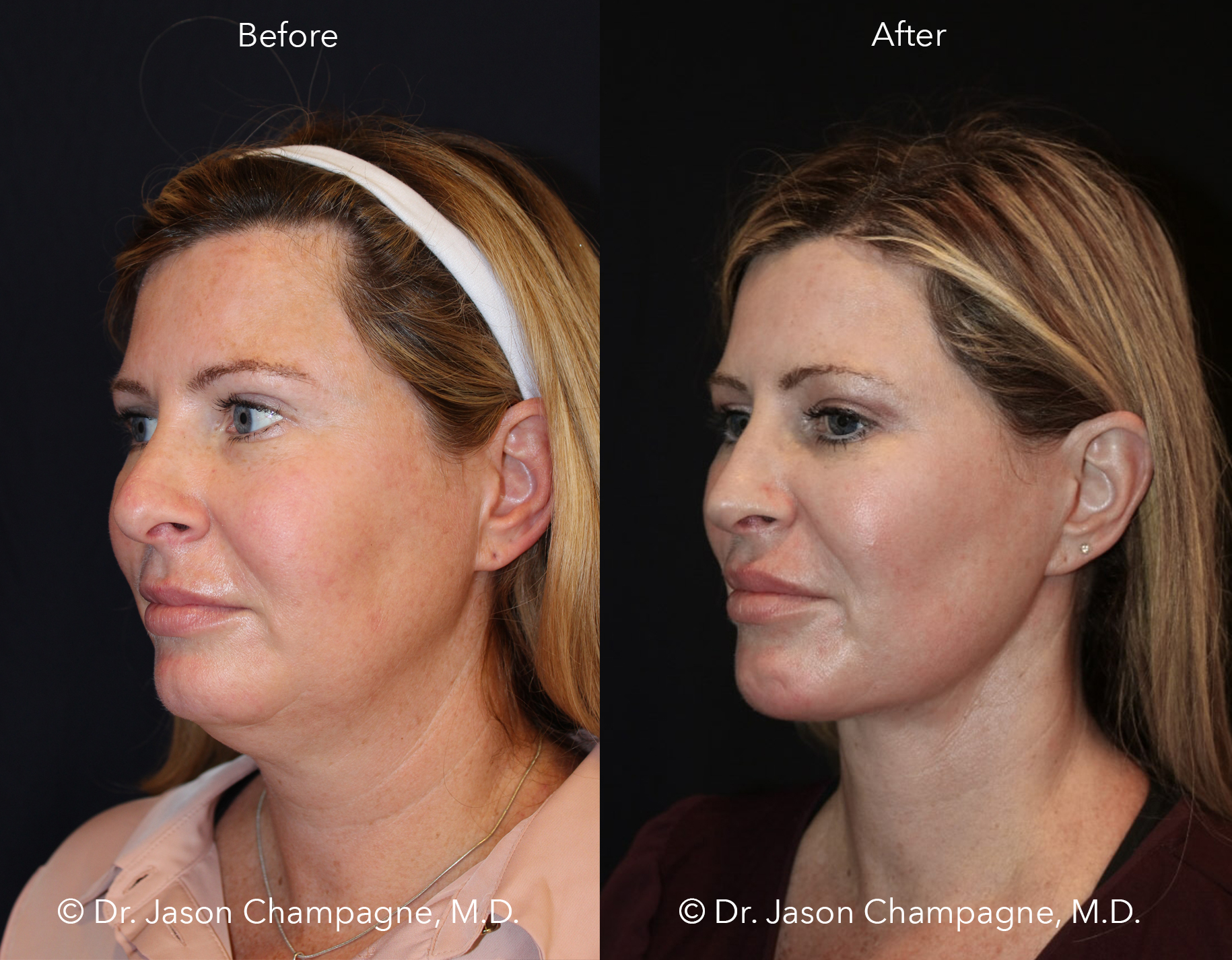 Dr-Jason-Champagne-Neck-Liposuction-Chin-Implant-Neck-Lift-Face-Lift-Rhinoplasty-Advanced-Radio-Frequency-Skin-Tightening-CO2-Laser-Skin-Resurfacing-Buccal-Fat-Excision-Before-and-After-3/4