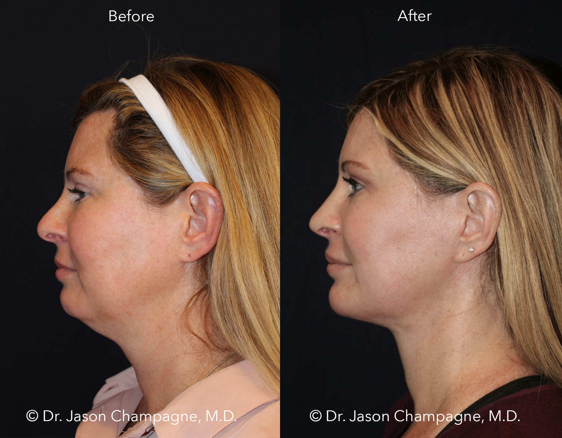 Dr-Jason-Champagne-Neck-Liposuction-Chin-Implant-Neck-Lift-Face-Lift-Rhinoplasty-Advanced-Radio-Frequency-Skin-Tightening-CO2-Laser-Skin-Resurfacing-Buccal-Fat-Excision-Before-and-After-Profile