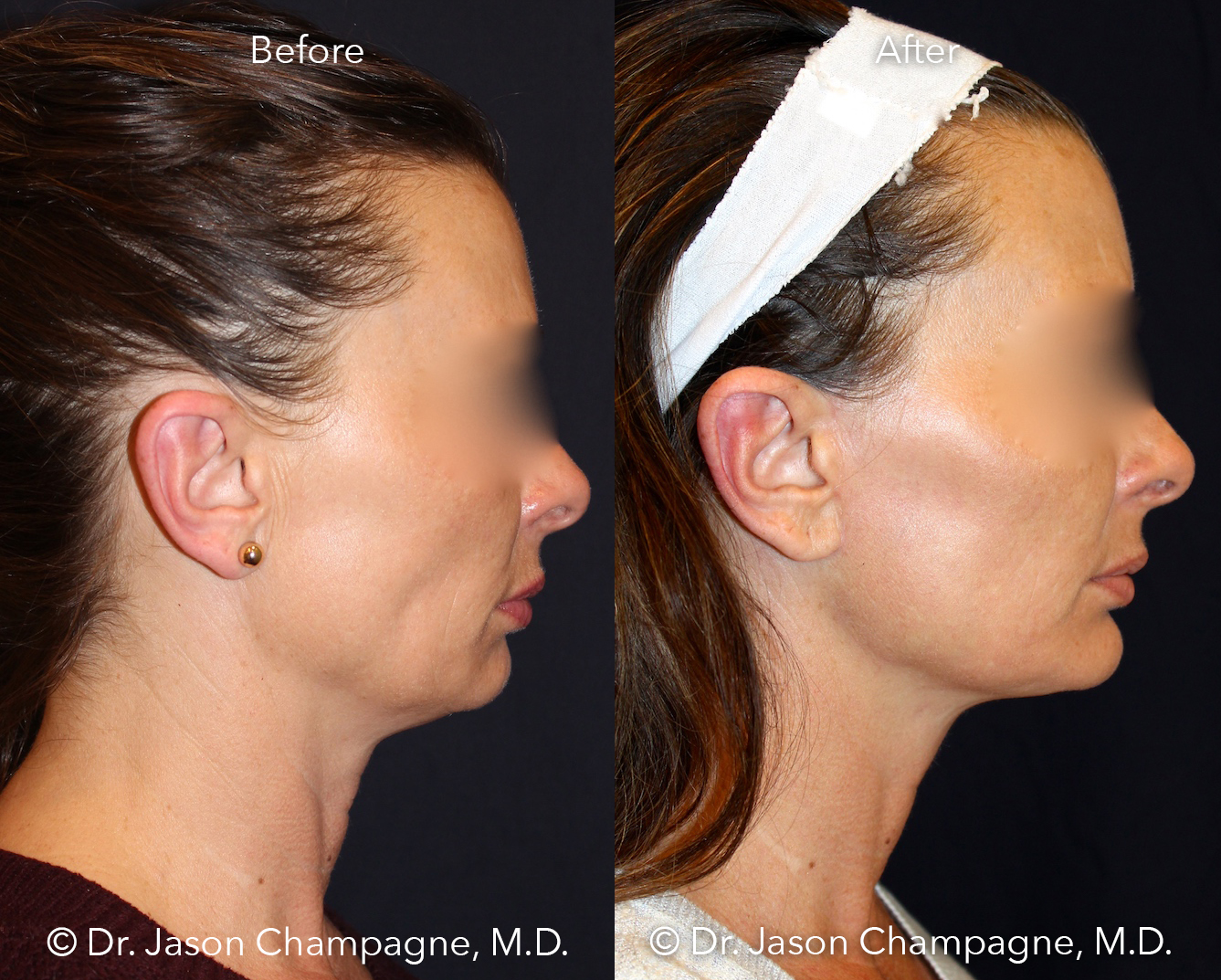 Dr-Jason-Champagne-mini-facelift-necklift-chin-implant-CO2 laser-skin-resurfacing-Before-and-After-Profile.jpg