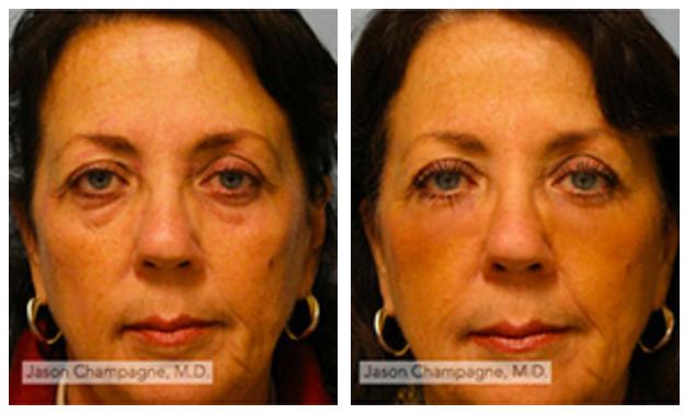 Case 3031 Laser Skin Rejuvenation.png