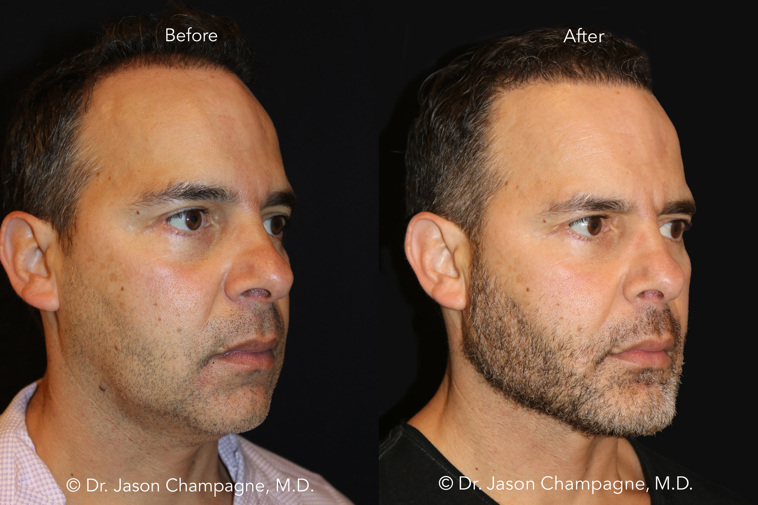 Dr-Jason-Champagne-Custom-Chin-and-Jaw-Hair-Transplantation-Before-and-After-3_4.jpg