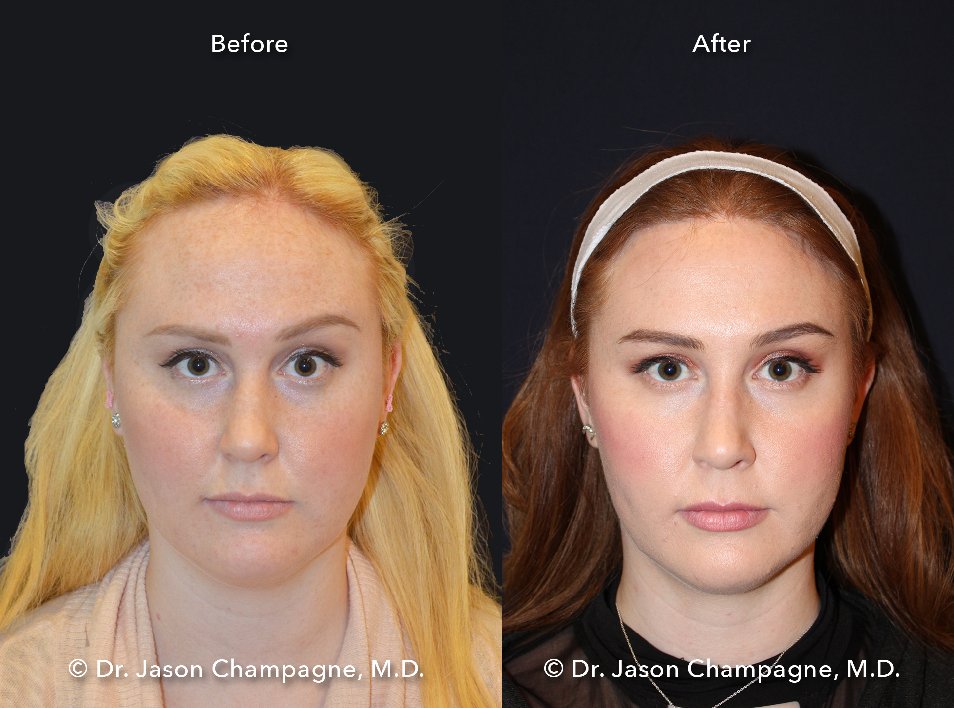 Dr-Jason-Champagne-Hairline-Lowering-Before-and-After-Front