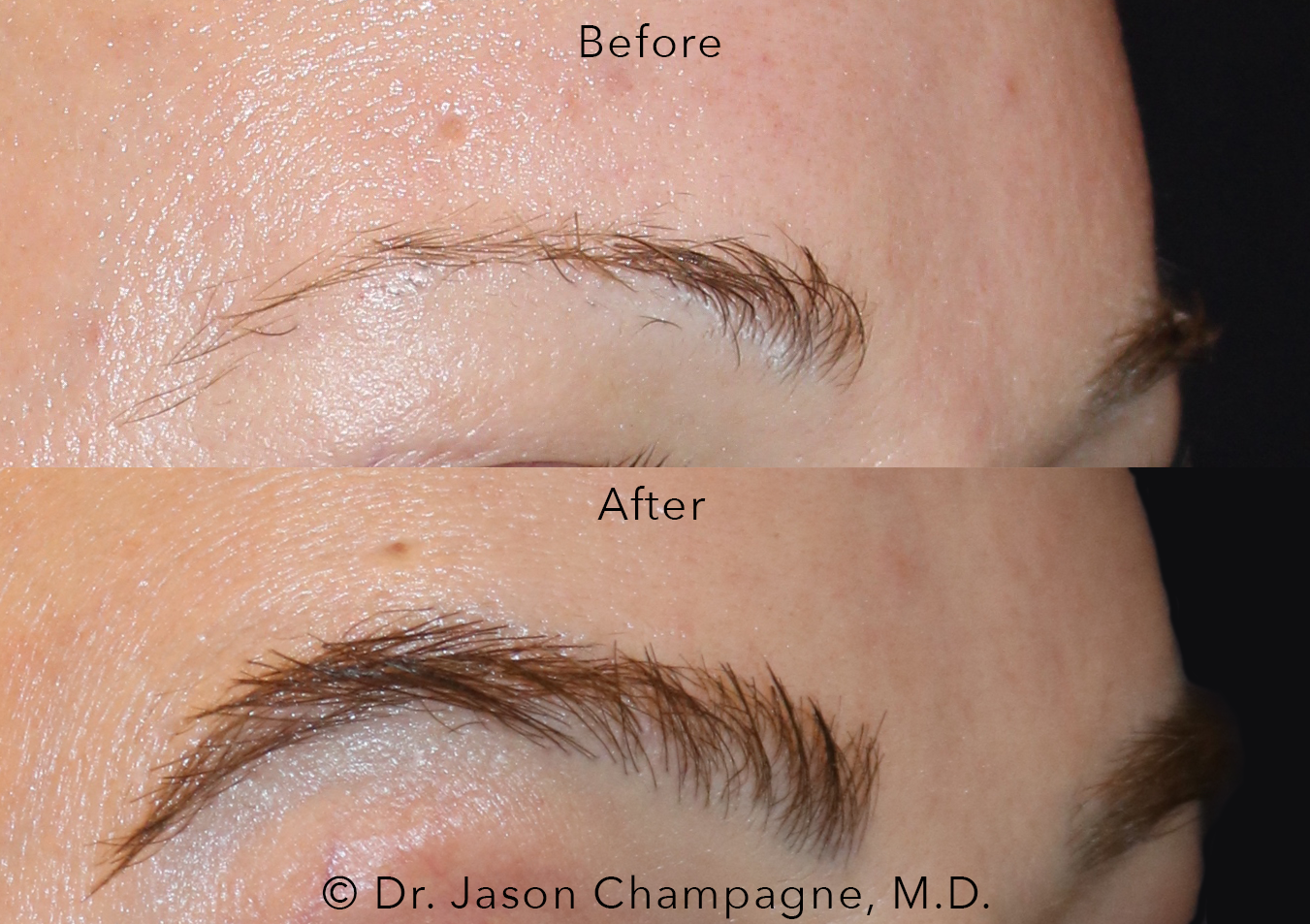 Dr-Jason-Champagne-Female-Eyebrow-Hair-Transplant-Before-and-After