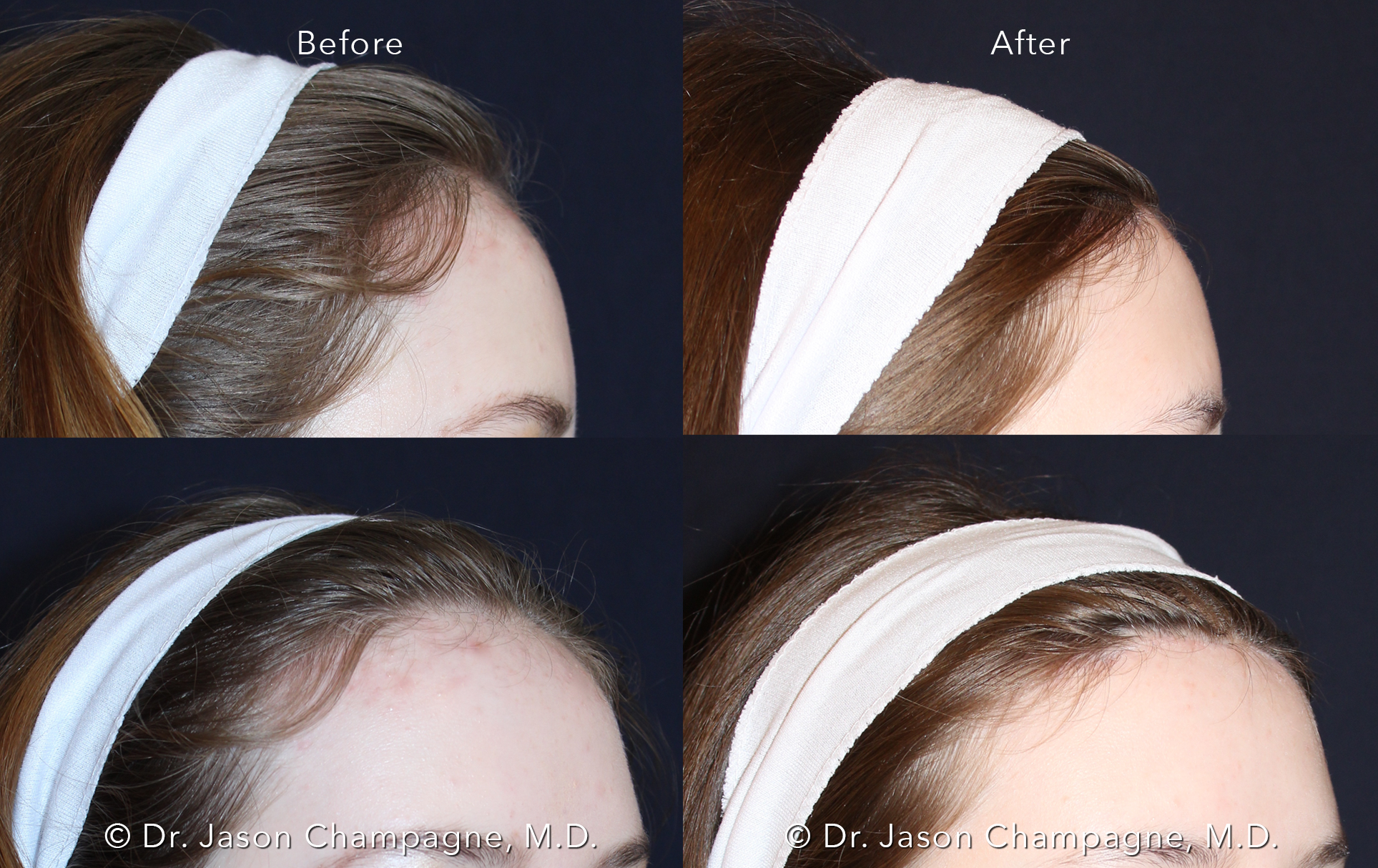 Dr-Jason-Champagne-Hairline-Lowering-Before-and-After.png