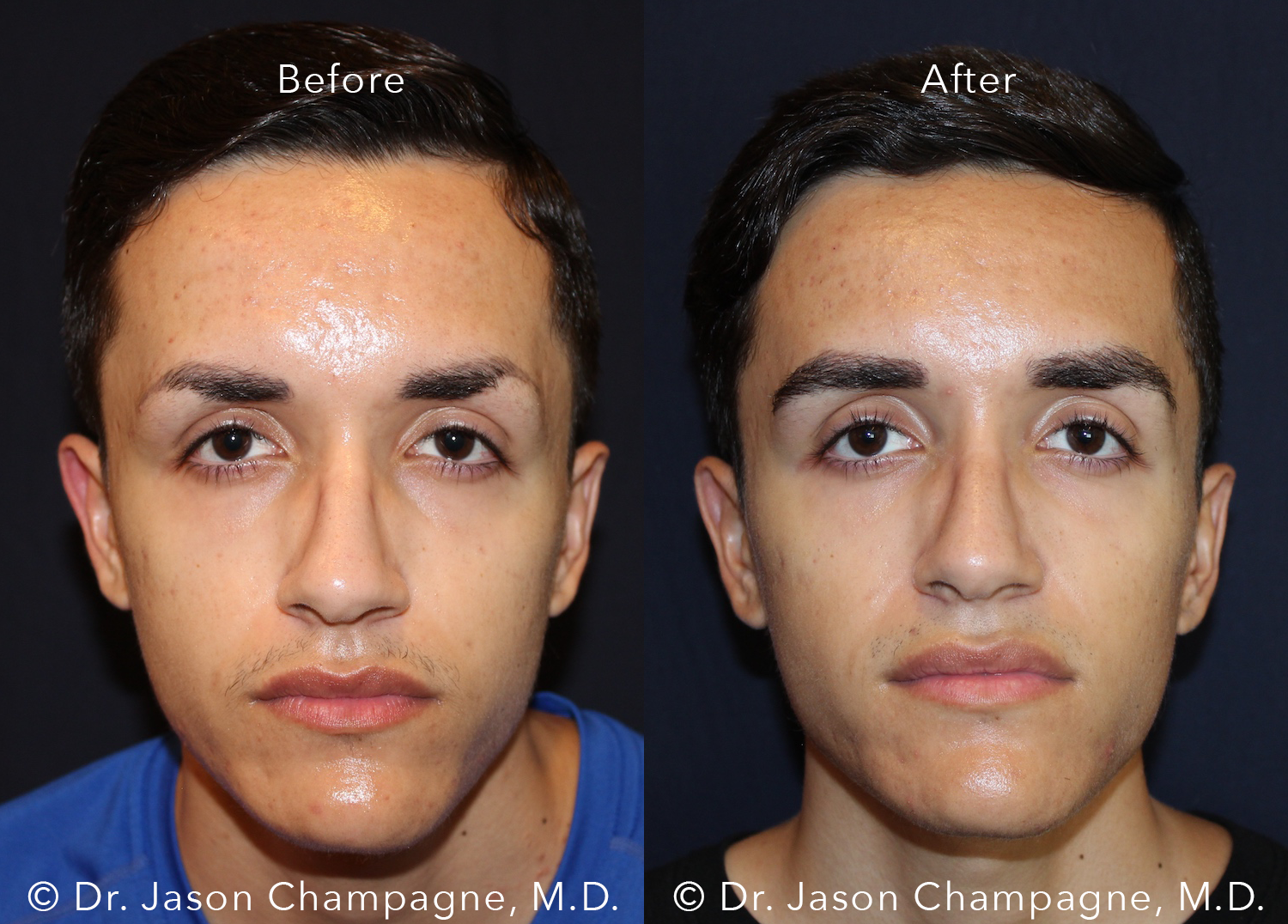 Dr-Jason-Champagne-Male-Eyebrow-Hair-Transplant-Before-and-After-Front