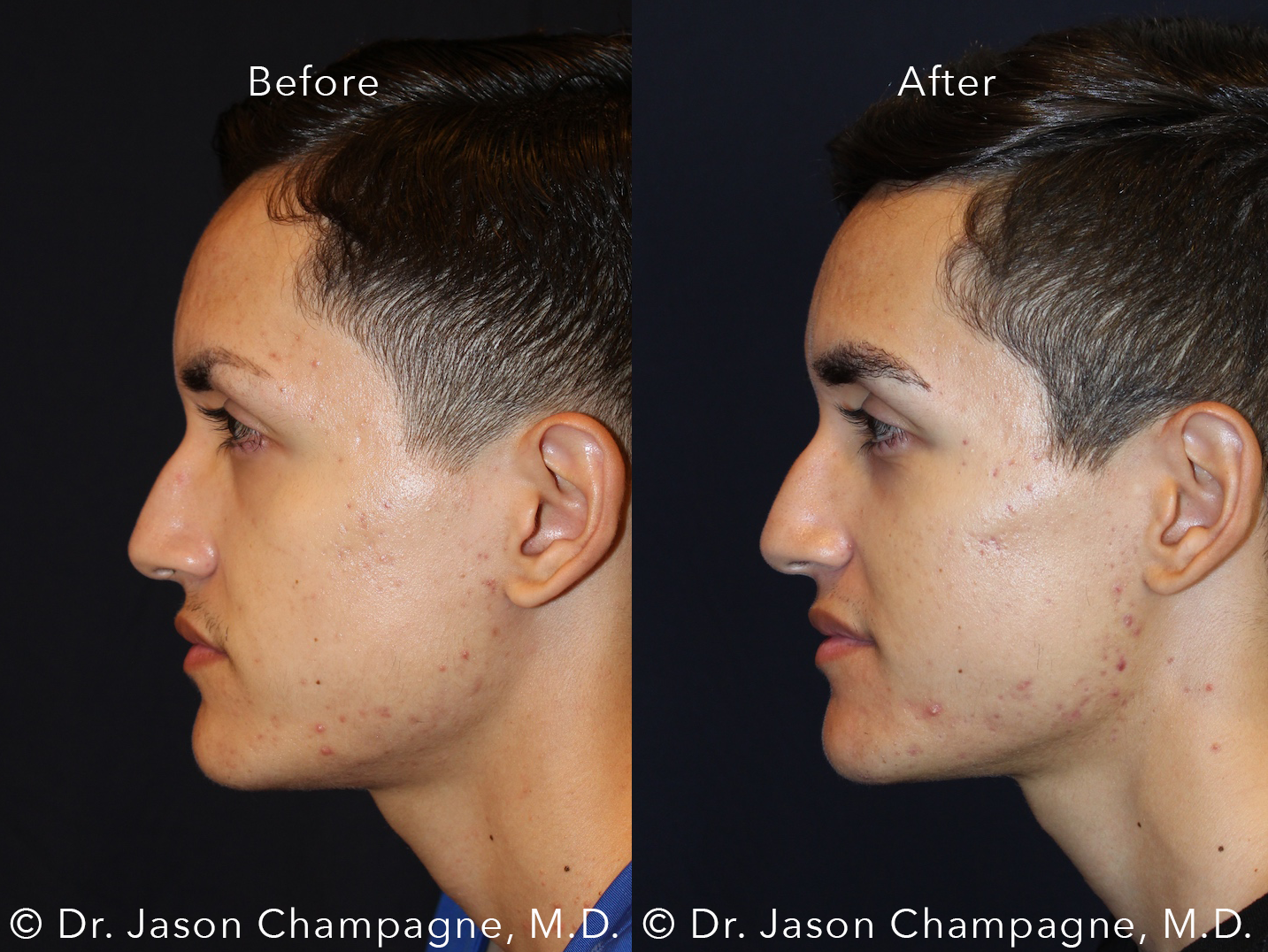 Dr-Jason-Champagne-Male-Eyebrow-Hair-Transplant-Before-and-After-Left-Profile
