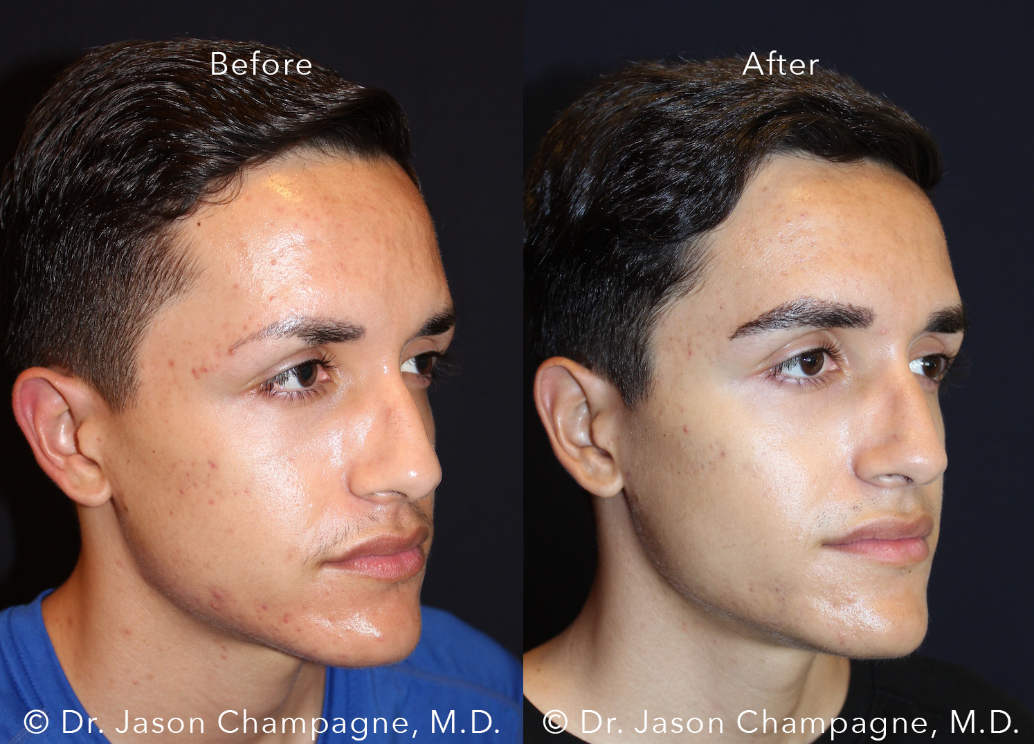Dr-Jason-Champagne-Male-Eyebrow-Hair-Transplant-Before-and-After-Right-3/4