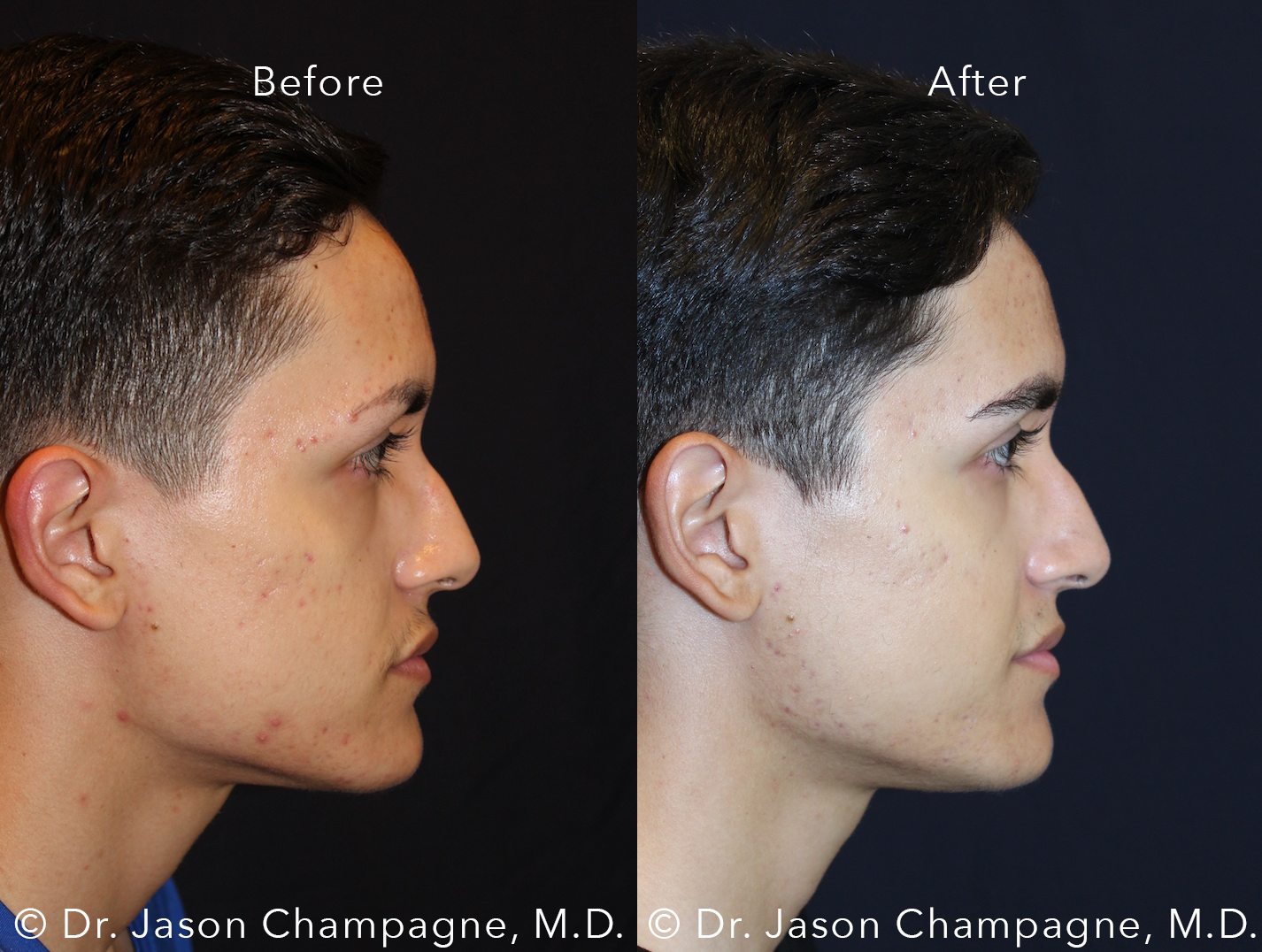 Dr-Jason-Champagne-Male-Eyebrow-Hair-Transplant-Before-and-After-Right-Profile