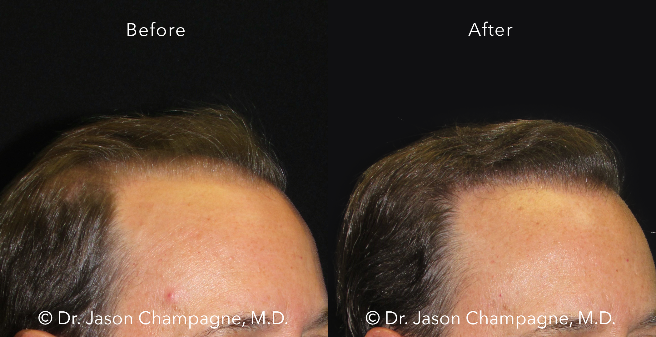 Dr-Jason-Champagne-Hair-Transplant-Before-and-After-3/4-7-26