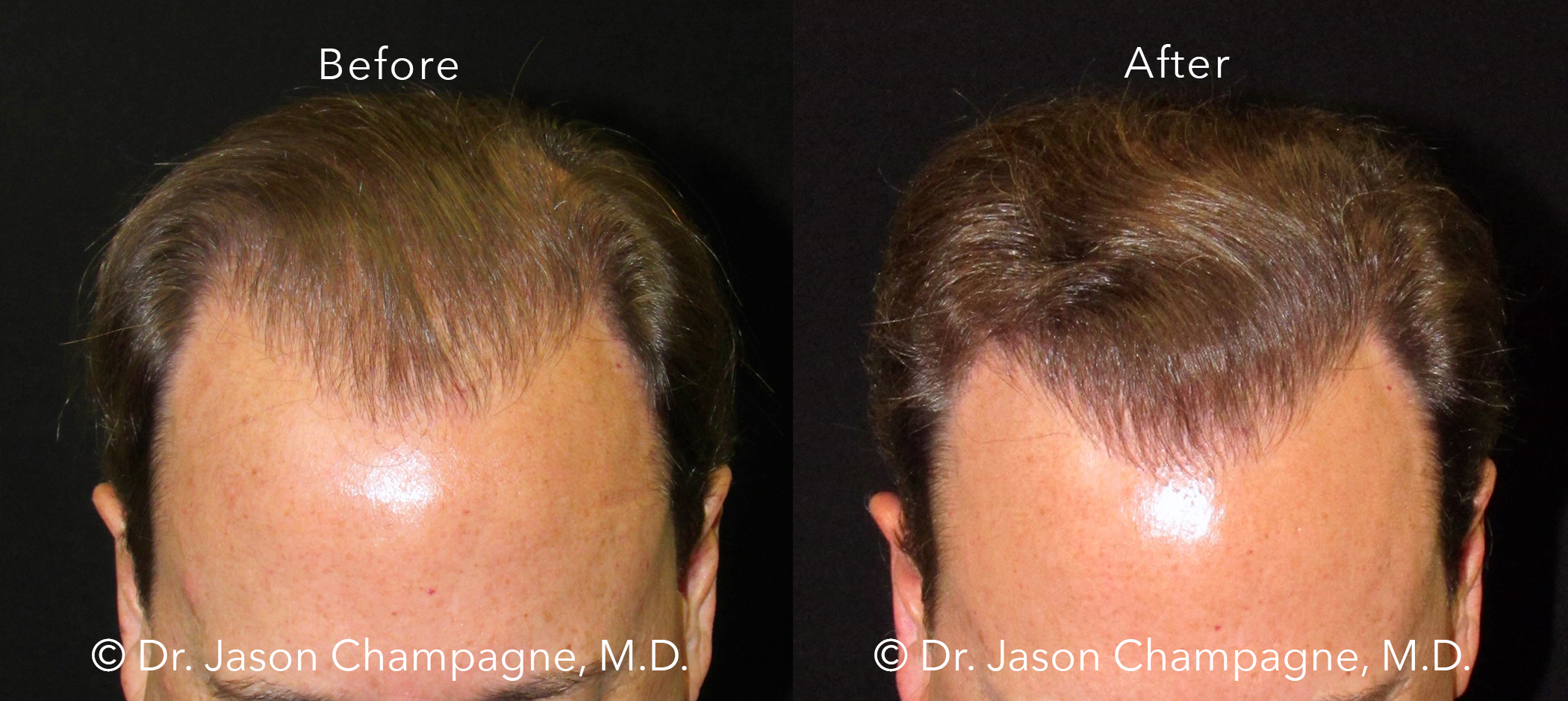 Dr-Jason-Champagne-Hair-Transplant-Before-and-After-Front-7-26