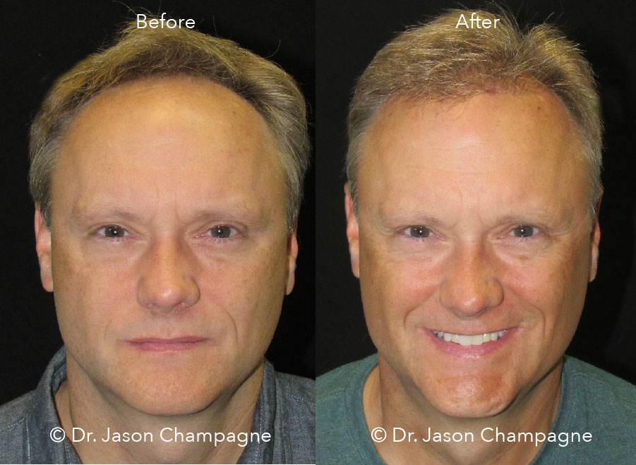 Dr-Jason-Champagne-Hair-Transplant-Before-and-After-Beverly-Hills-CA-Front