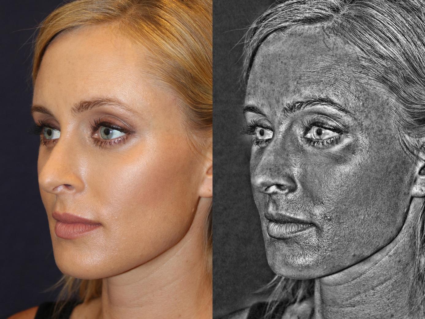 Dr. Jason Champagne Plastic Surgery Beverly Hills CA - Skinbright
