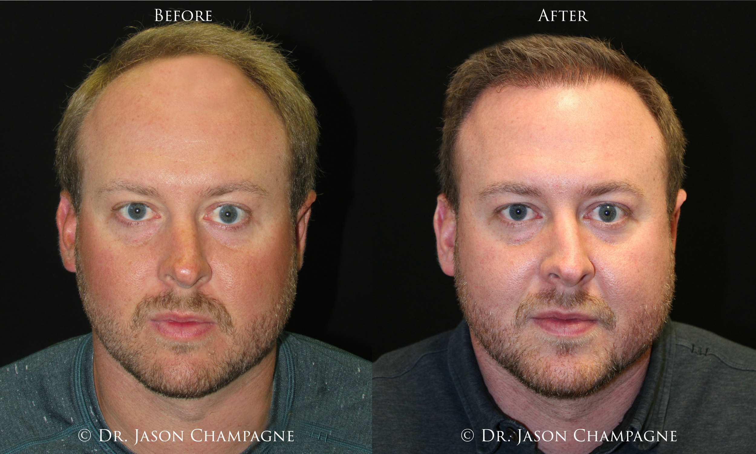 Dr-Jason-Champagne-Hair-Transplant-Before-and-After 1.22.19.png