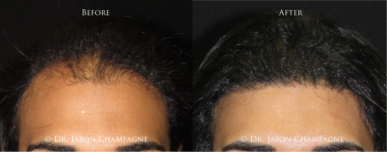 Dr-Jason-Champagne-Hair-Transplantation-Before-and-After-3-11-19 2