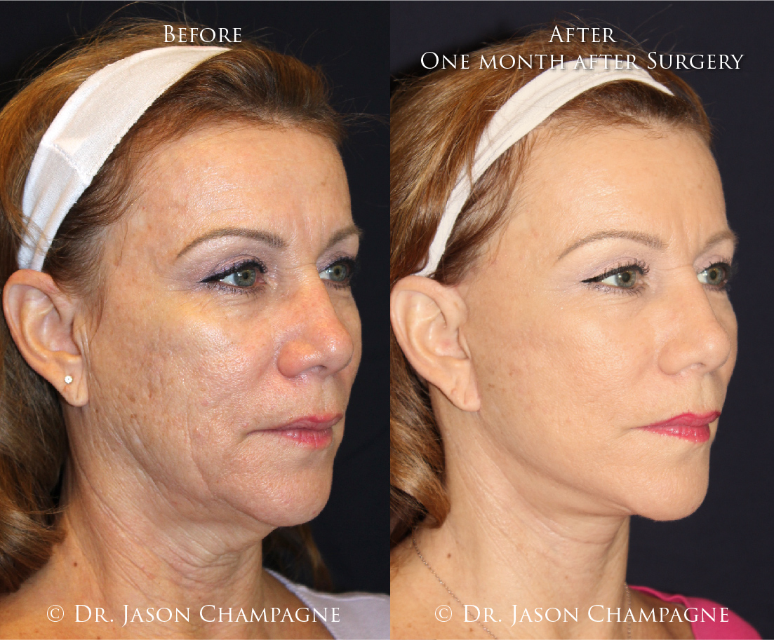Dr-Jason-Champagne-Facelift-oblique-and-Necklift-Before-and-One-Month-After-Surgery