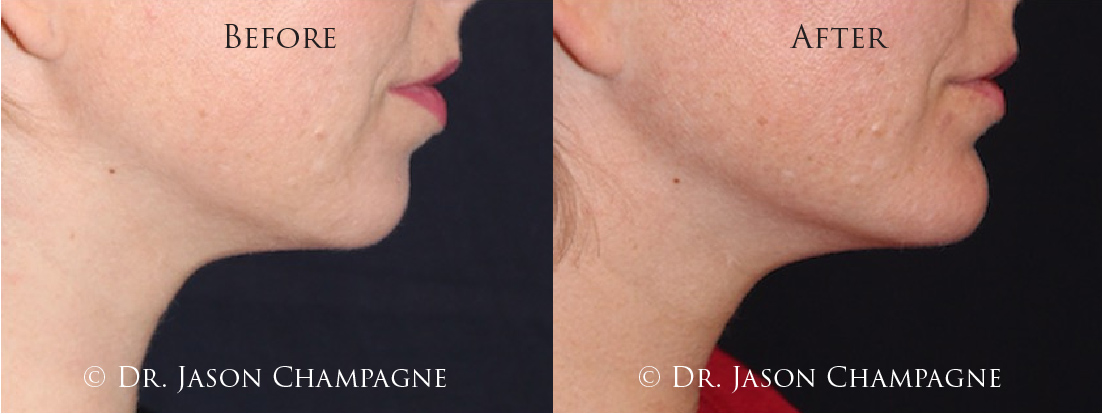 Dr-Jason-Champagne-Custom-Chin-Implant-Before-and-After-3-11-19