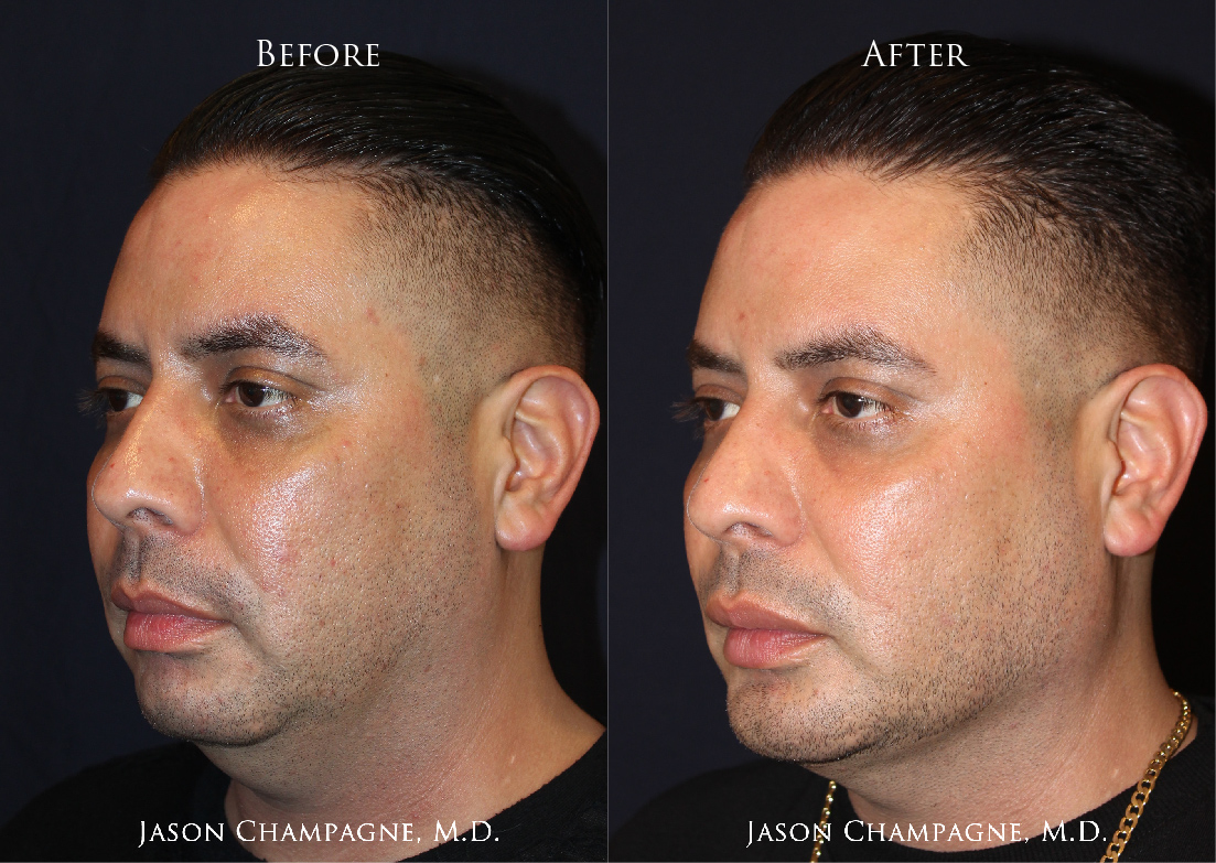 Dr-Jason-Champagne-Custom-Chin-and-Jaw-Implant-Before-and-After-3-11-19