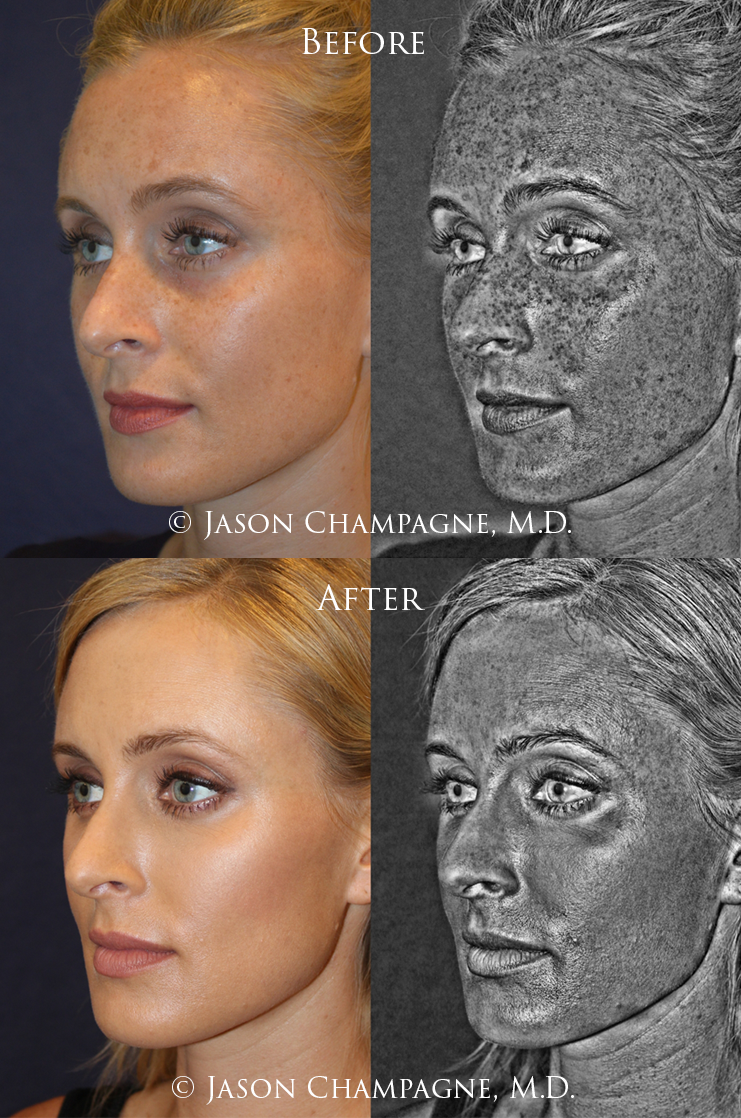 Bright & Tight Skin Therapy: Fractionated Radio-Frequency Skin Tightening -