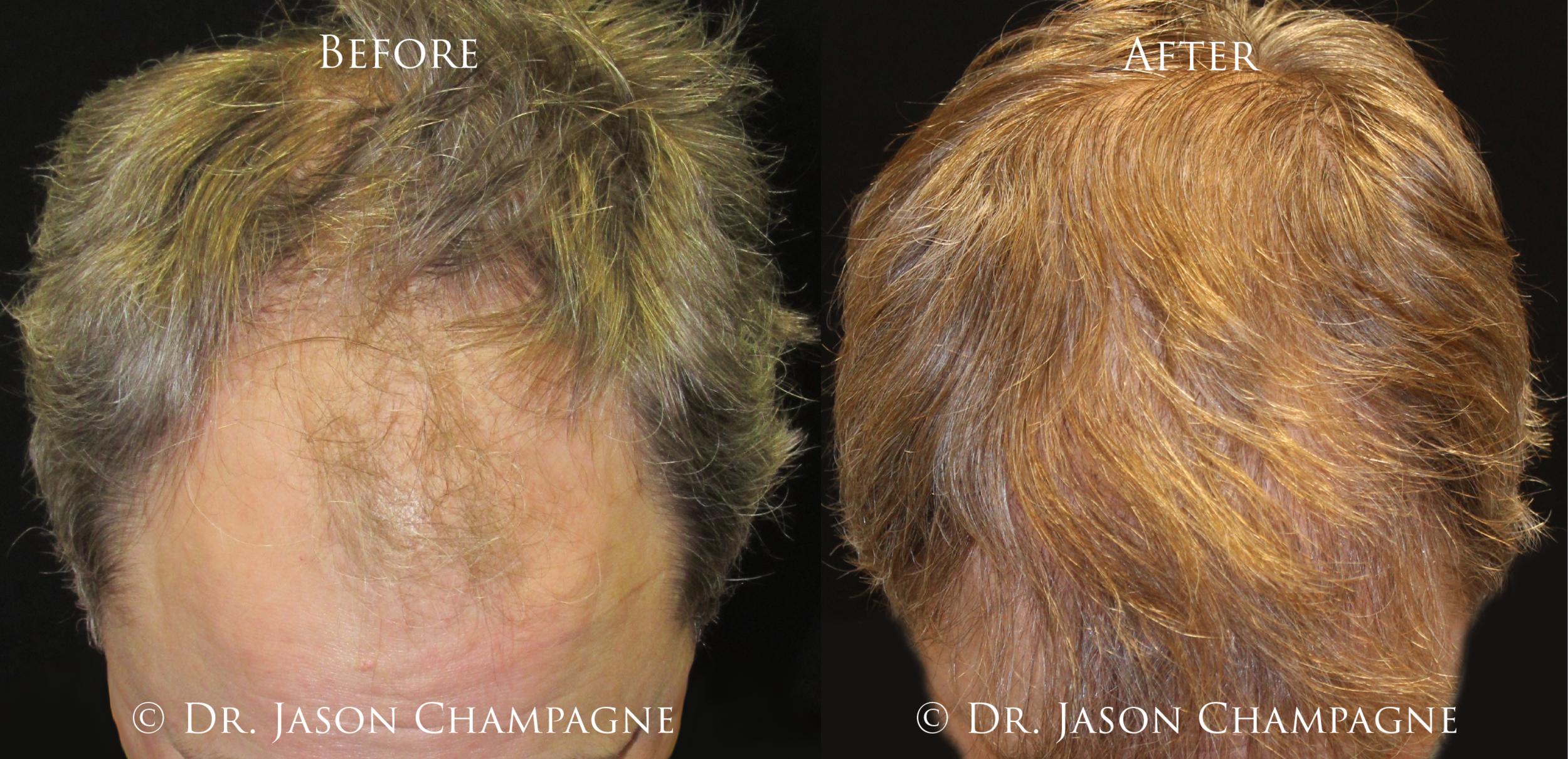 Dr-Jason-Champagne-Hair-Transplant-Plastic-Surgeon-Beverly-Hills-CA