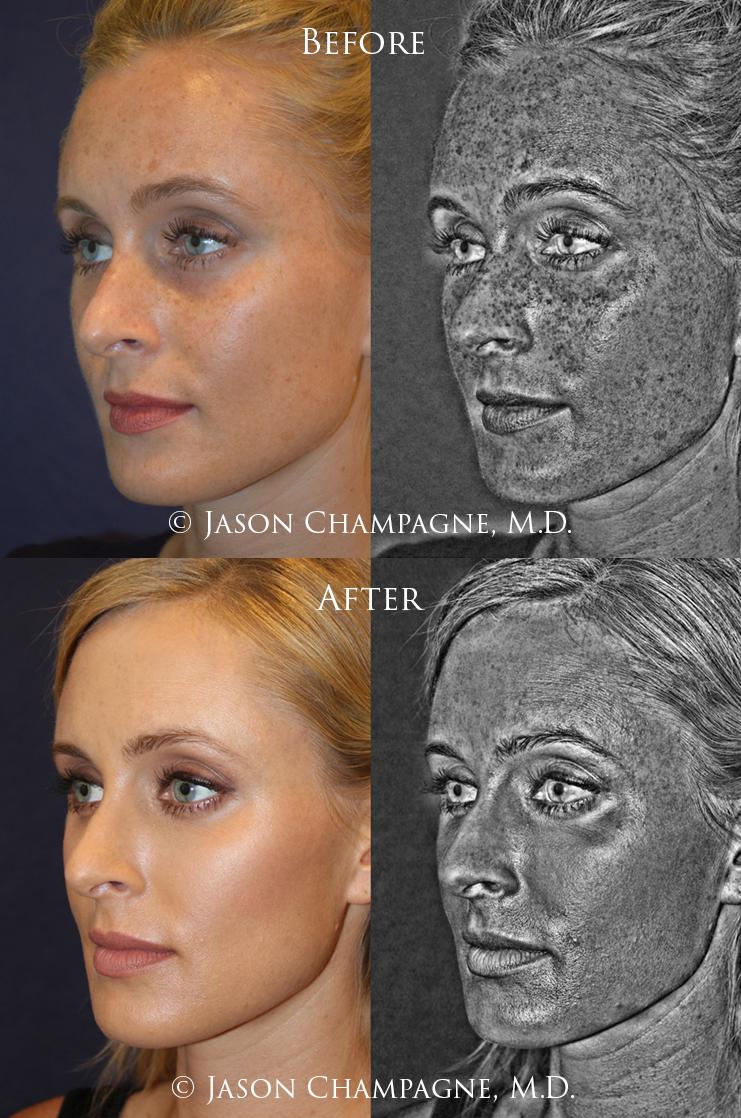 Dr. Jason Champagne, Plastic Surgeon, Beverly Hills, CA