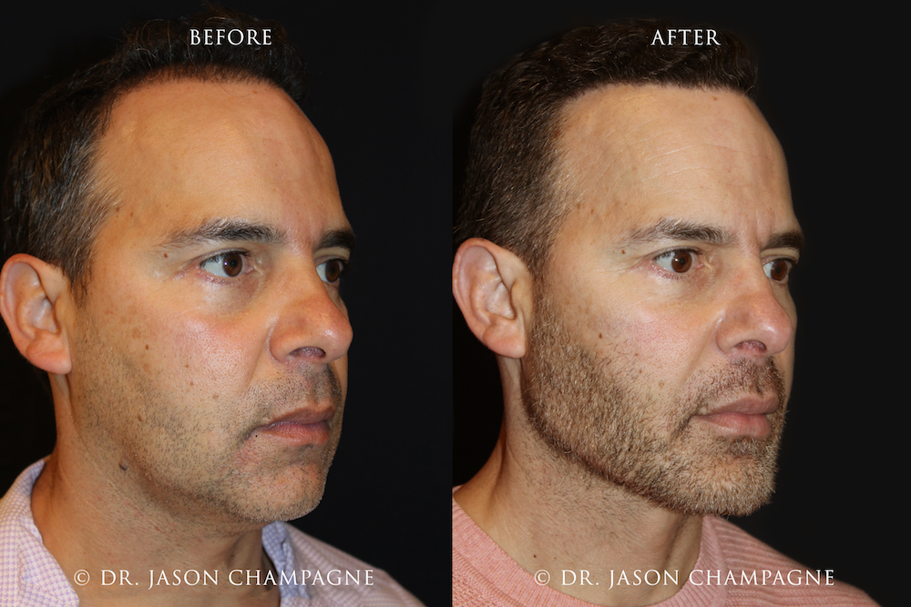 Custom-Chin-and-Jaw-Before-and-After-3_4.png