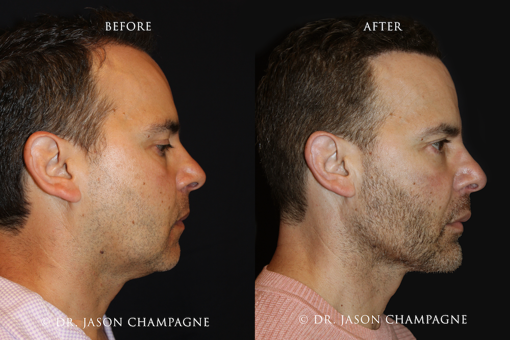 Dr. Jason Champagne - Custom-Chin-and-Jaw-Before-and-After-Profile