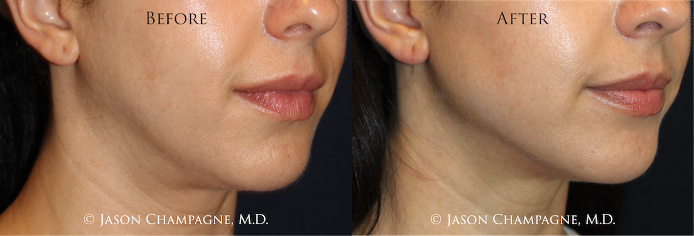 Dr Jason Champagne Plastic Surgeon Beverly Hills, CA - Before and After Jaw Angle Contouring.png